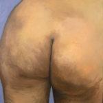 BMO - Attention, chute de rein – 2004 d'apès F. Vallotton - Huile sur toile 65 x 50 cm